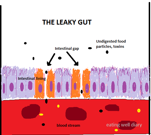 The Leaky Gut, Immunity And More on the Gluten Issue
